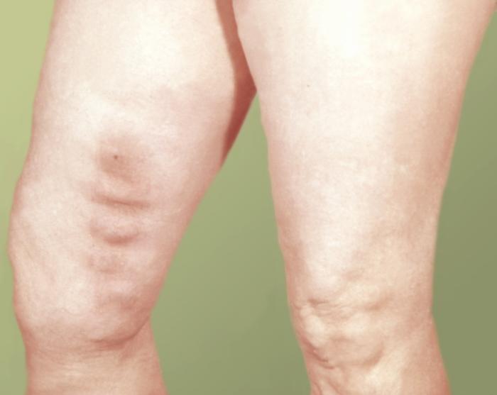 Лечение вен и варикоза казань