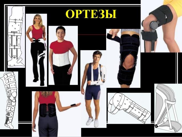 гипермобильность суставов в 5 лет что это