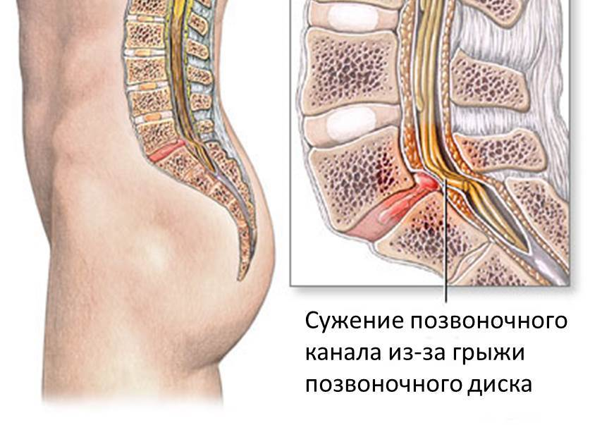 Болит ухо лечить капли