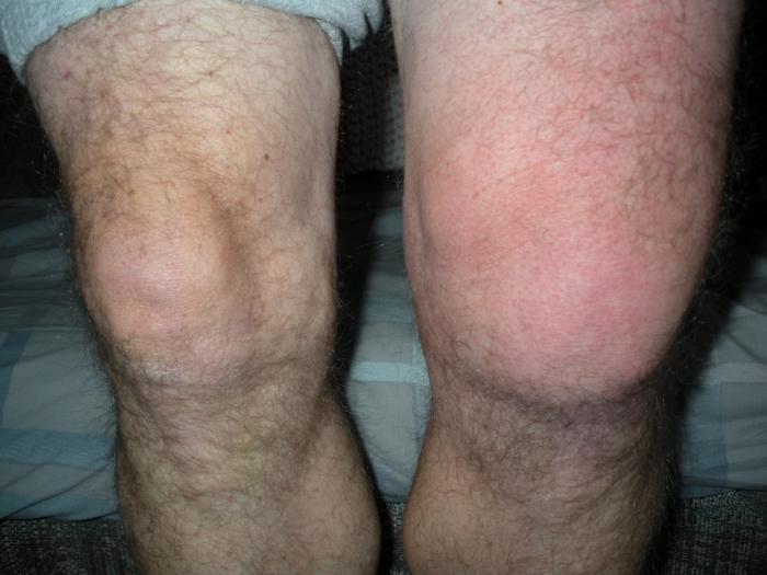Колено опухло и болит при сгибании лечение как снять отек коленного сустава