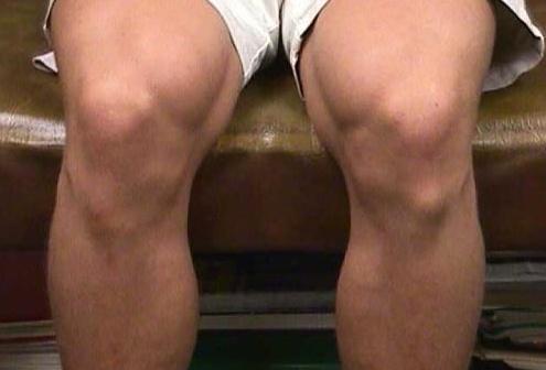 остеохондропатия коленного сустава армия