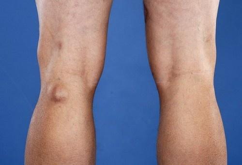 Киста Бейкера, киста мениска коленного сустава: лечение народными ...