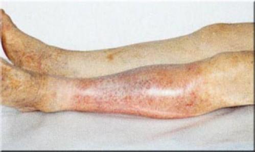 Почему горят коленные суставы точки акупунктуры для лечения коленного сустава