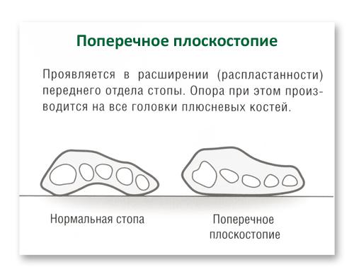 Как вылечить плоскостопие в лет