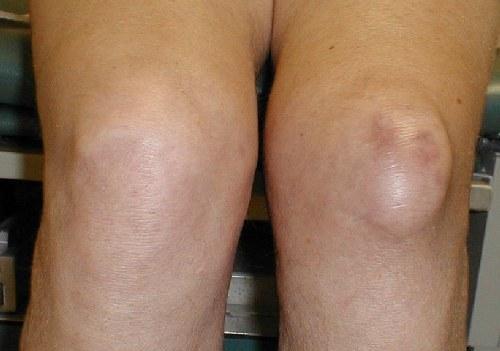 Артроз коленного сустава воспаления лечение