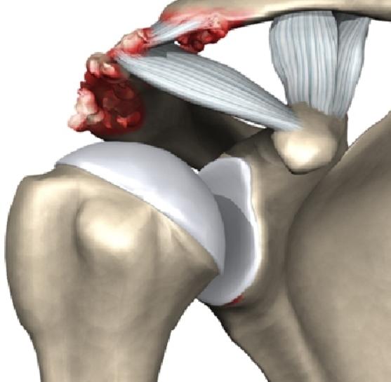 Акромиально ключичный сустав травмы клиники в волгограде по восстановлению суставов