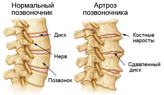 Артроз (остеоартроз) позвоночника и дугоотросчатых суставов ...