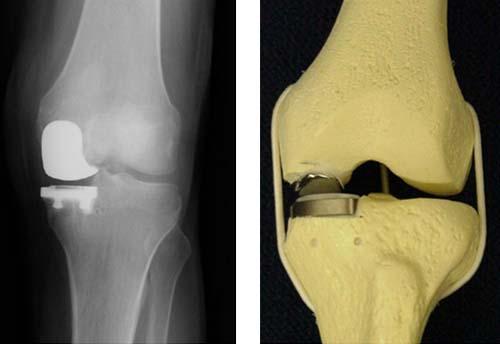 Одномыщелковое эндопротезирование коленного сустава отдаленные прогнозы чем лечить эпикондилит локтевого сустава народными средствами
