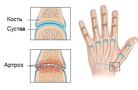 Ответы Mail Ru: Почему хрустят пальцы?: )
