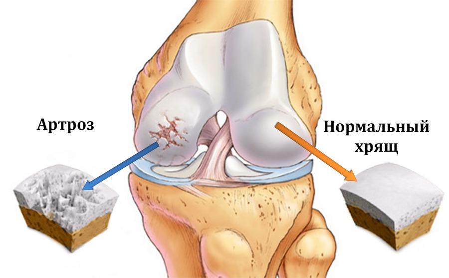 Артроз (гонартроз, остеоартроз) коленного сустава: симптомы и лечение