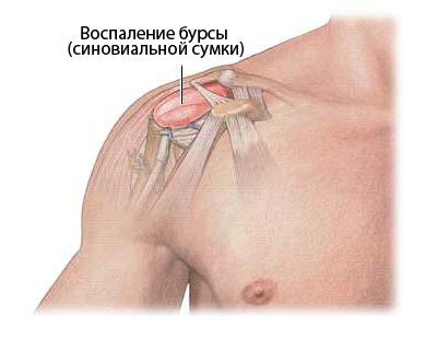 Бурсит плечевого сустава - симптомы и лечение. Субакромиальный и ...