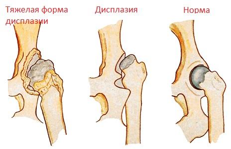 Дисплазия тазобедренных суставов что это кедровые шишки и суставы