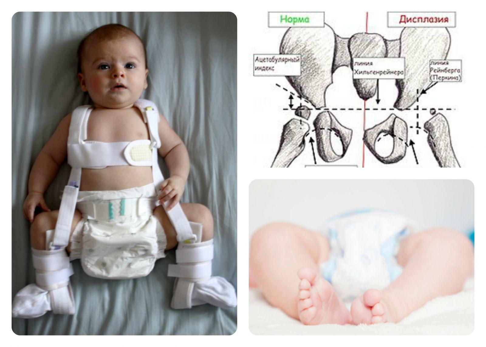 дисплазия тазобедренных суставов у детей в 2 года