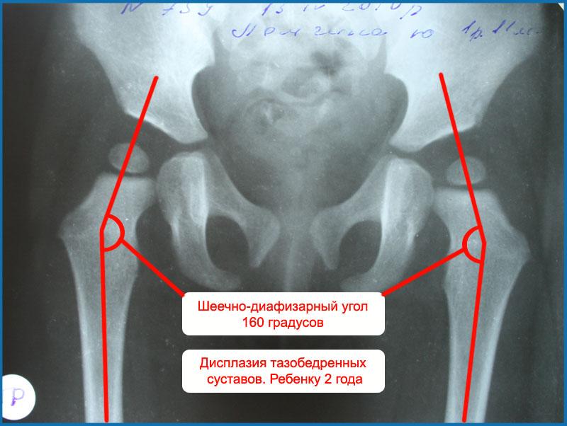 УЗИ тазобедренных суставов у грудничков: норма углов, рентген ...