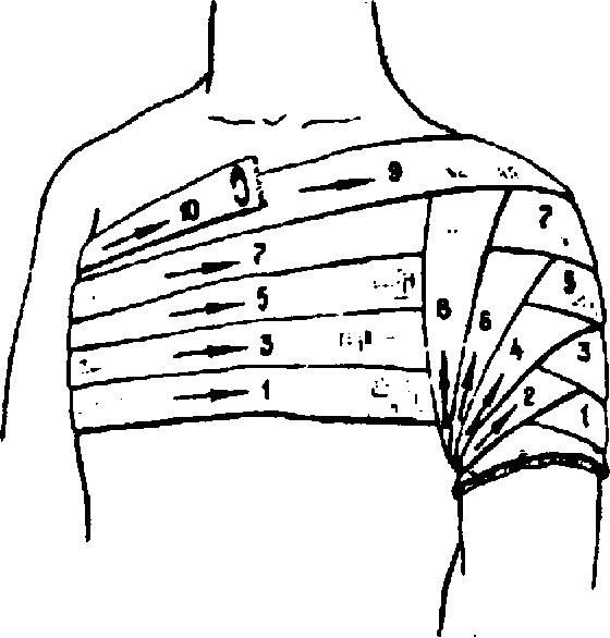 Методика наложения колосовидной повязки на плечевой сустав у ребенка скрип в коленных суставах