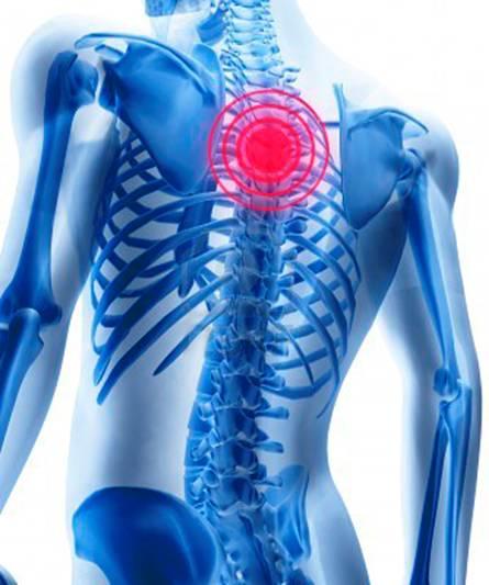 Остеохондроз шейного отдела позвоночника симптомы