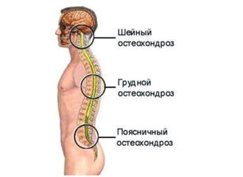 Чем лечить остеохондроз шейного отдела позвоночника в домашних условиях