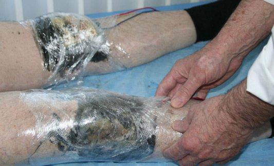 Лечение позвоночника водными процедурами