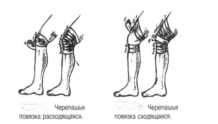 Черепашья на коленный сустав