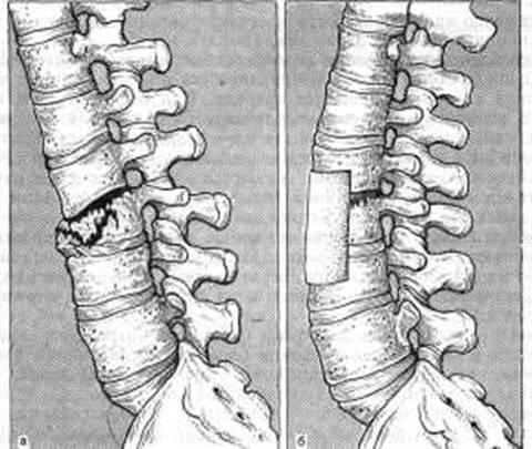 Что значит остеохондроз поясничного отдела позвоночника