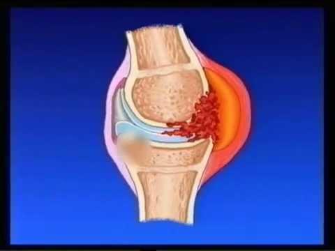 ревматизм суставов симптомы и лечение видео