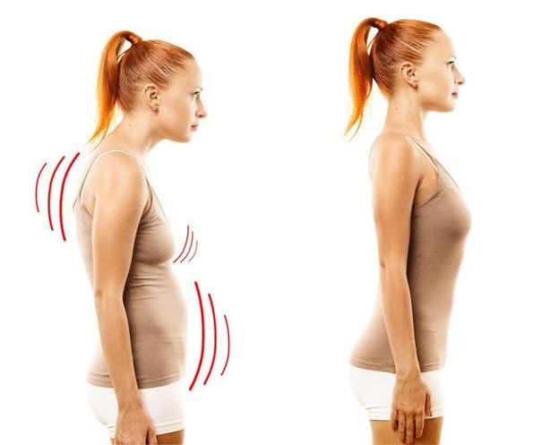 Кифоз грудного и шейного отделов позвоночника: лечение, упражнения ...