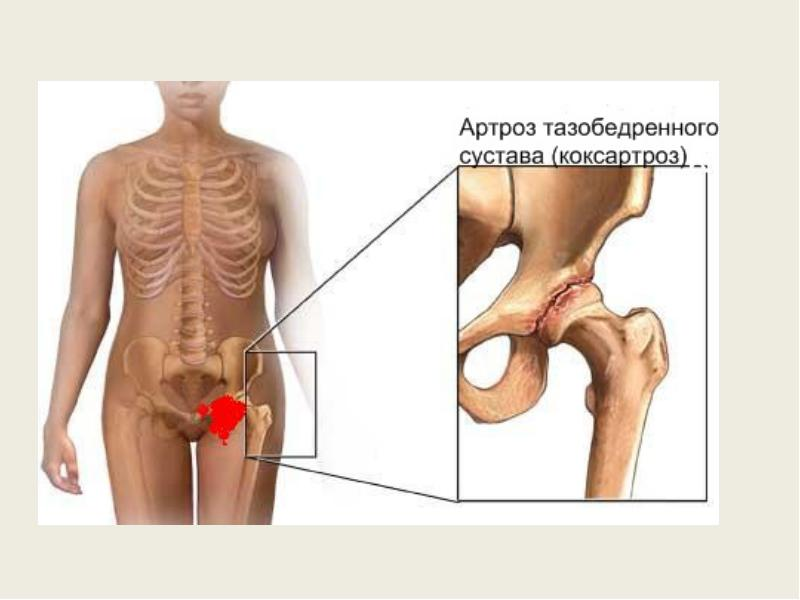 Коксартроз тазобедренного сустава – причины, симптомы, 2 и ...