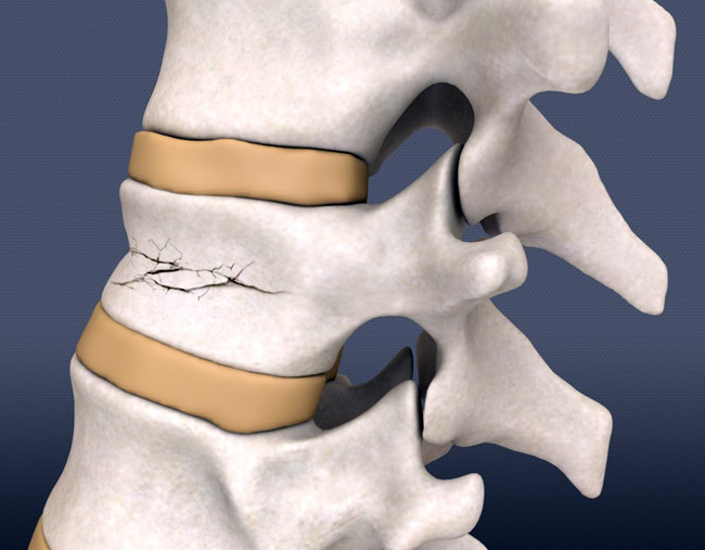 Заболевания позвоночника грудного отдела позвоночника симптомы