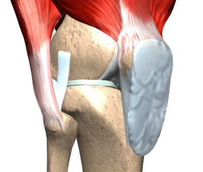 Лечение тугоподвижности суставов сыктывкар протезирование сустава