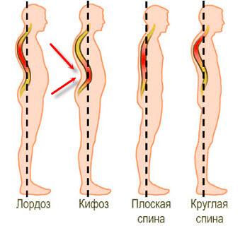 Причины возникновения лордоза кифоза сколиоза