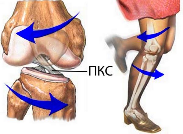 разрыв пкс коленного сустава лечение