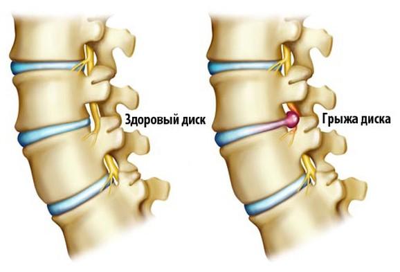 Боли в спине справа в средней части