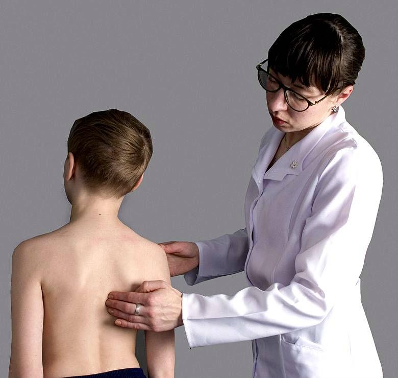 Методы лечения сколиоза видео