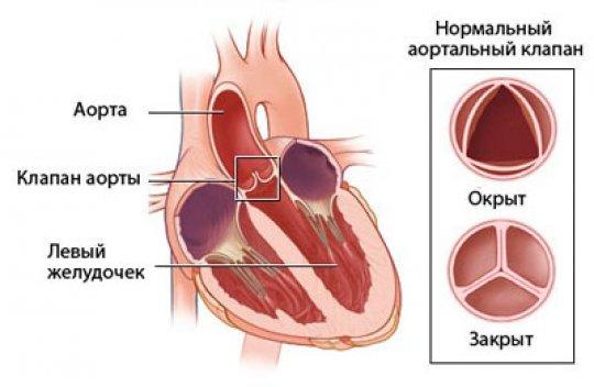 типичных характеристик сердечный клапан забит кальцием лечение полная
