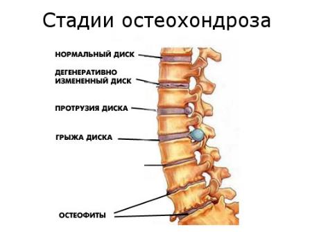 Болела спина потом нога