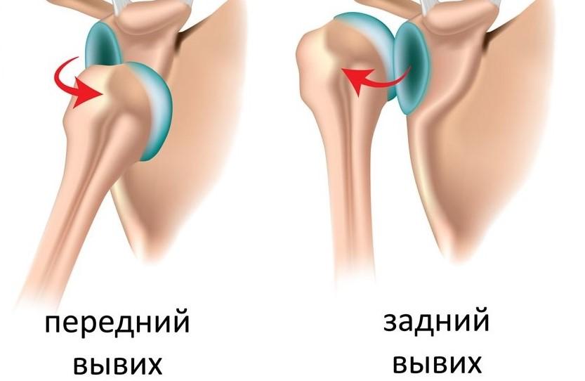 Привычный вывих плечевого сустава лечение без операции