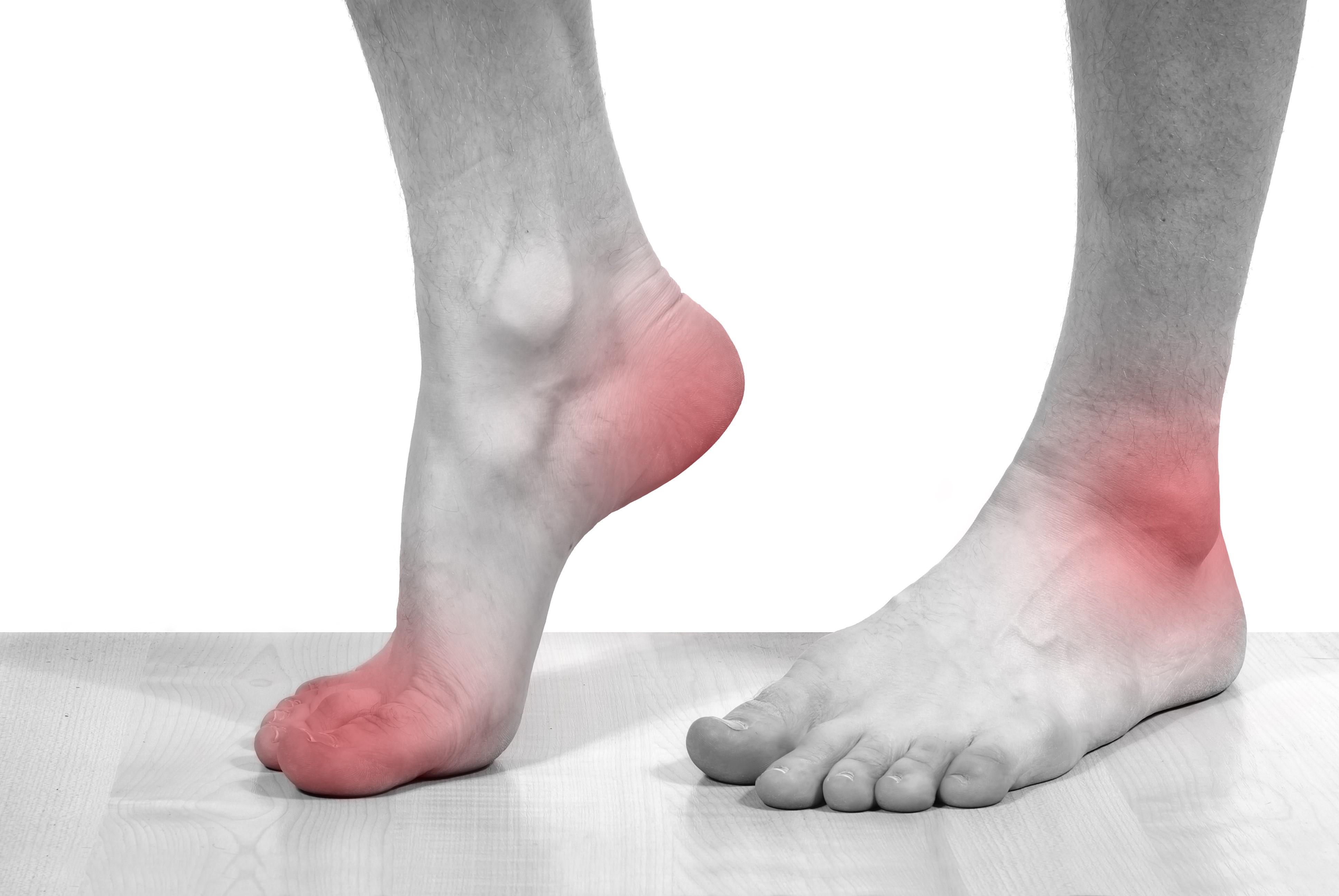 ostriy-artrit-bolshogo-paltsa