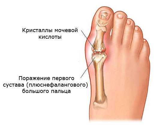 Лечение артрита коленного сустава методом бубновского