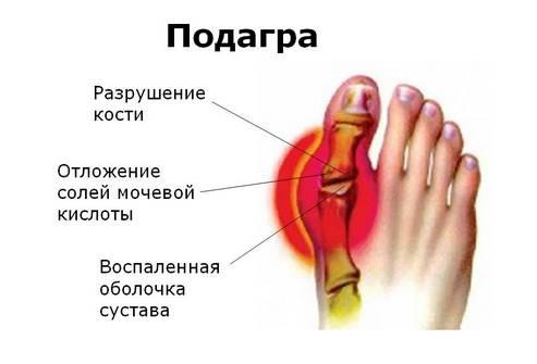 Подагра у мужчин и женщин - признаки, симптомы, методы лечение