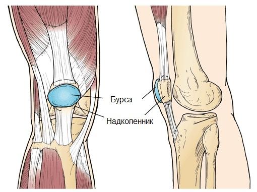 Бурсит коленного сустава (супрапателлярный (препателлярный ...