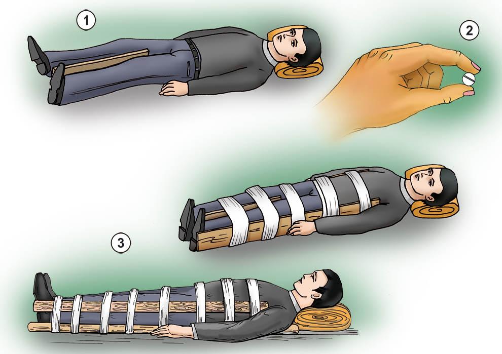 Как вылечить седалищный нерв.