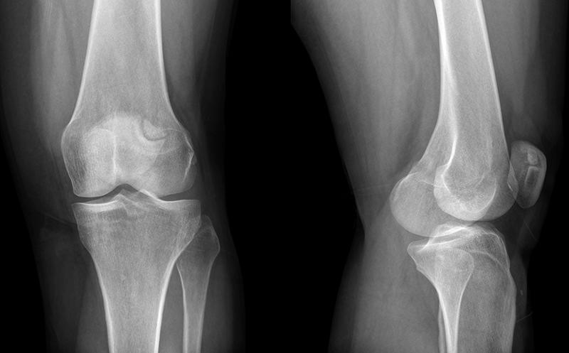 ортез коленного сустава орлет