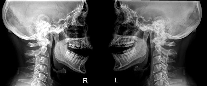 Рентгеновские снимки височнонижнечелюстной сустав слабость боль в суставах и мышцах сонливость