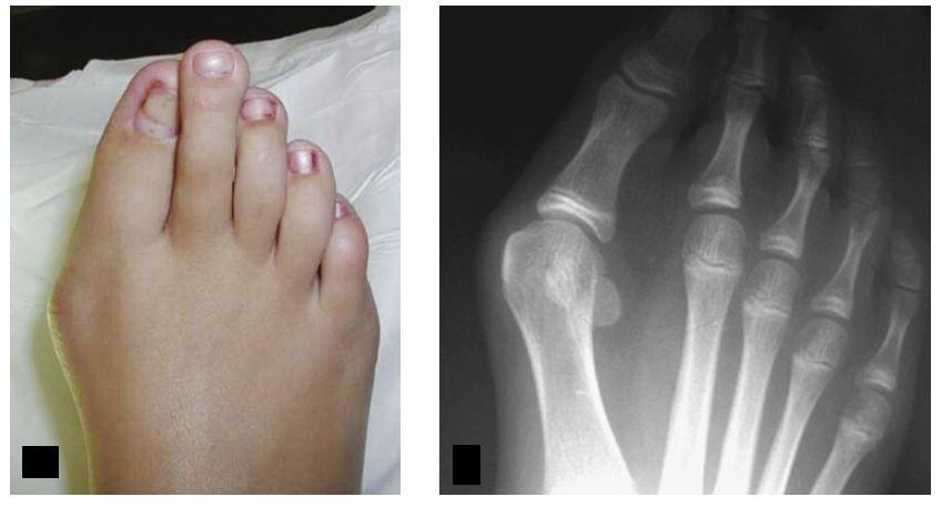 Палец Молоткообразный