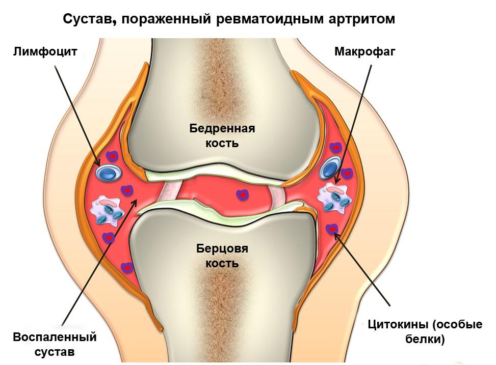 Болят и опухают все суставы ног после 50, лечение