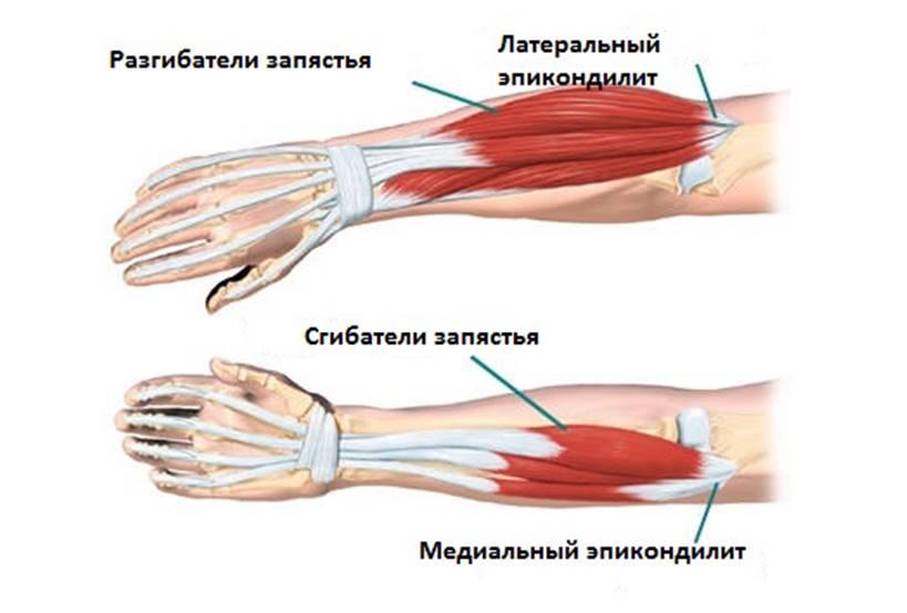 Растяжение сухожилий локтевого сустава симптомы болит спина и тазобедренные суставы