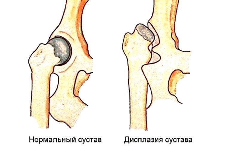 харьков артроскопия коленного сустава