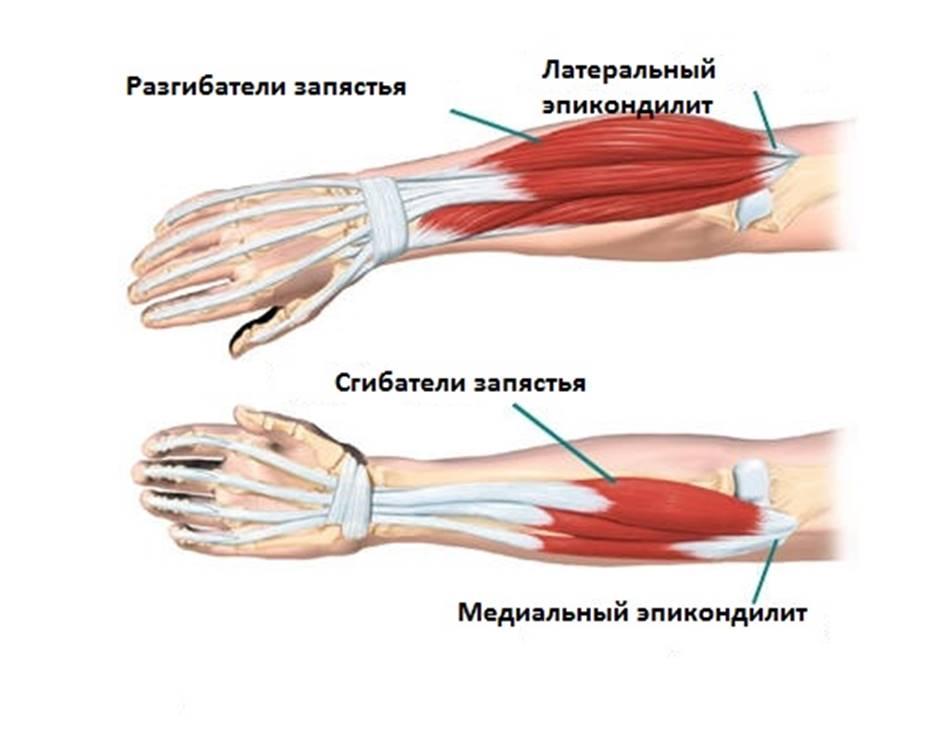 лечение эпикондилита локтевого сустава народные средства лечения