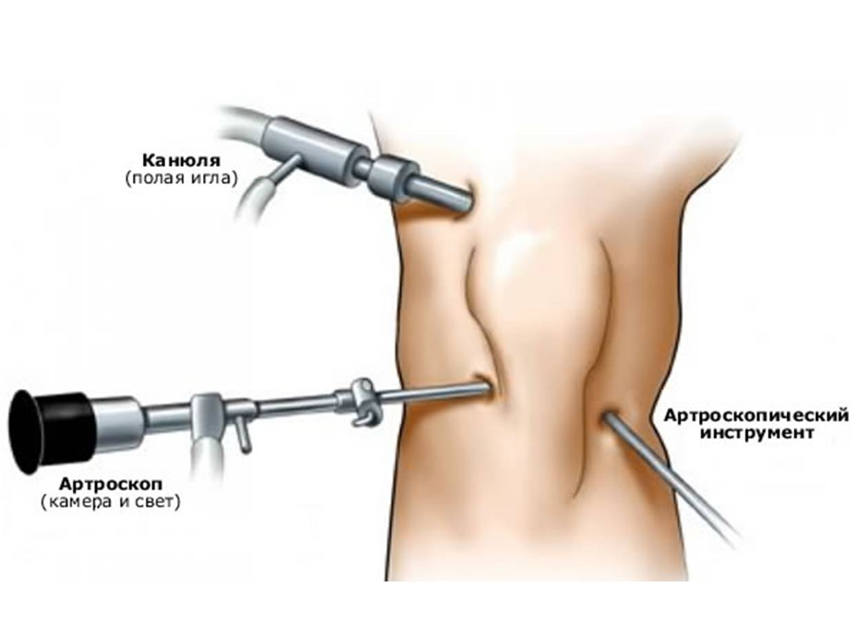 Коленного сустава эндоскопическая операция ревматоидный артрит коленных суставов упражнения