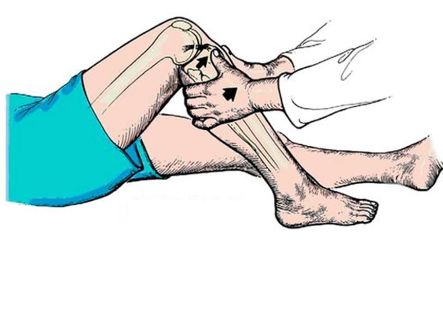 разрыв связок коленного сустава у собак симптомы и